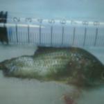 Sức khỏe đời sống - Suýt chết vì cá rô sống chui vào họng