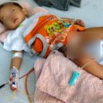 Sức khỏe đời sống - Bé bị cắt nhầm bàng quang về lại Khánh Hòa điều trị