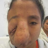 Cắt bỏ khối u khổng lồ trên mặt thiếu nữ