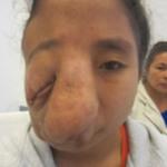Sức khỏe đời sống - Giáo sư Mỹ ra tay cứu 2 bệnh nhân bị biến dạng mặt