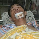 Tin tức trong ngày - Quăng lưới quái xế, CSGT bị ép ngã bất tỉnh