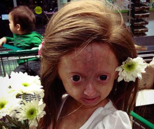 Bé gái 6 tuổi thân thể bà già - 1