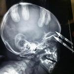 Sức khỏe đời sống - Vấp ngã, bé trai bị kéo đâm sâu hốc mắt