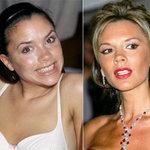 Làm đẹp - Sao Hollywood đổi sắc nhờ chỉnh răng