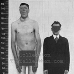 Phi thường - kỳ quặc - Người lùn đột biến thành người khổng lồ