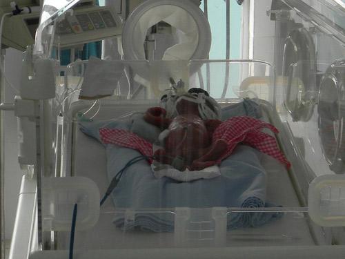 Trọng lượng bé trai suýt bị chôn sống giảm - 1