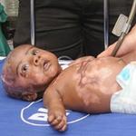 Phi thường - kỳ quặc - Em bé tự phát hỏa