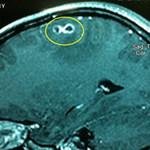 Sức khỏe đời sống - Đau đầu vì giun đũa chó làm tổ trong não