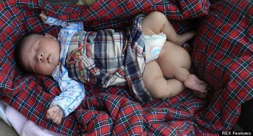 Bé sơ sinh 3 chân bị bỏ rơi - 1