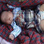 Tin tức trong ngày - TQ: Bé gái sơ sinh 3 chân suýt bị mẹ bỏ rơi