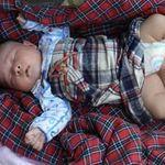 Sức khỏe đời sống - Bé sơ sinh 3 chân bị bỏ rơi