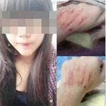 Bạn trẻ - Cuộc sống - Xôn xao cô gái bị tấn công trên đường