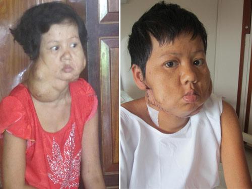 Khuôn mặt mới của phụ nữ bất hạnh sau phẫu thuật - 1