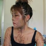 An ninh Xã hội - Nữ lễ tân nhà hàng bị tạt axit trong đêm