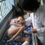 Sức khỏe đời sống - Mắc bệnh lạ, chàng trai rụng dần tứ chi