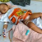 Sức khỏe đời sống - Bác sĩ Mỹ sẽ mổ cho bé bị cắt nhầm bàng quang