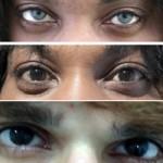 Phi thường - kỳ quặc - Xôn xao phẫu thuật thay màu mắt vĩnh viễn