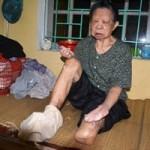 Sức khỏe đời sống - Hà Nội: Bệnh nhân phong bị ăn bớt thuốc?