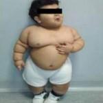 Phi thường - kỳ quặc - Phẫu thuật cho bé 2 tuổi nặng 33kg