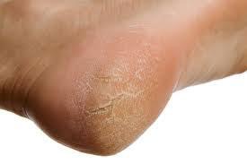 Cách trị nứt gót chân hiệu quả - 1