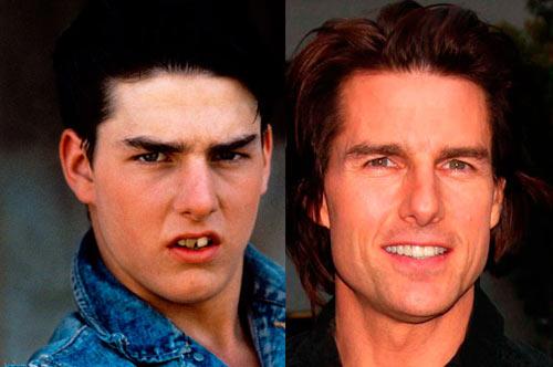 Giật mình với hàm răng xấu xí của sao Hollywood - 1