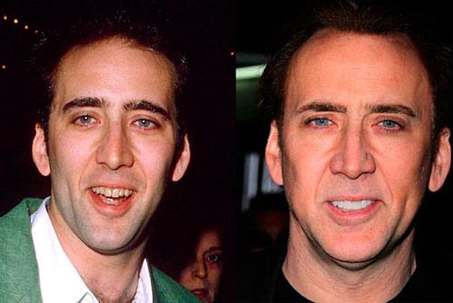 Giật mình với hàm răng xấu xí của sao Hollywood - 10