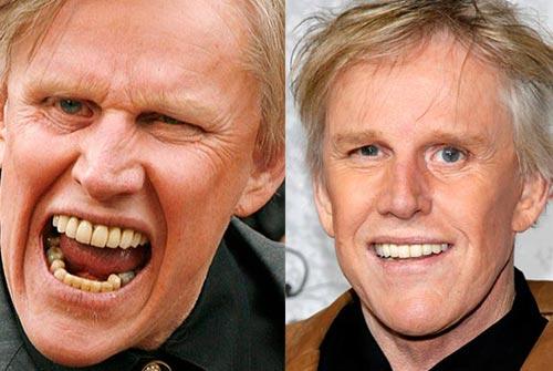 Giật mình với hàm răng xấu xí của sao Hollywood - 11