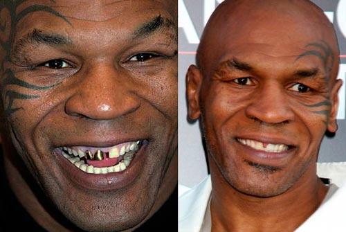 Giật mình với hàm răng xấu xí của sao Hollywood - 12