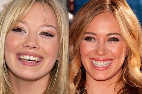 Giật mình với hàm răng xấu xí của sao Hollywood - 2