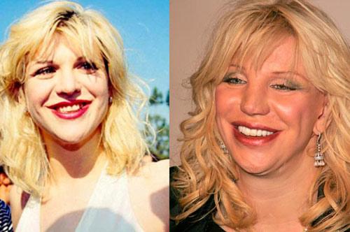 Giật mình với hàm răng xấu xí của sao Hollywood - 5