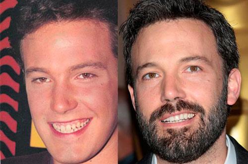Giật mình với hàm răng xấu xí của sao Hollywood - 6