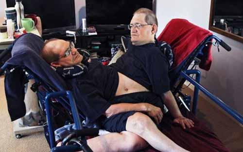 Đời thường của cặp sinh đôi dính liền sống lâu nhất TG - 3