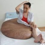 Phi thường - kỳ quặc - Cắt bỏ khối u 110 kg cho người đàn ông Trung Quốc