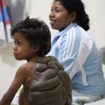 Sức khỏe đời sống - Cậu bé khổ sở vì khối u hình mai rùa trên lưng