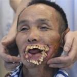 Phi thường - kỳ quặc - Mang hàm răng kỳ quái vì bị sói tấn công