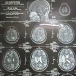Sức khỏe đời sống - Ăn nem thính bị sán lợn làm tổ trong não