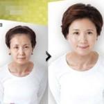 """Sức khỏe đời sống - Hành trình U50 """"lột xác"""" bằng phẫu thuật thẩm mỹ"""