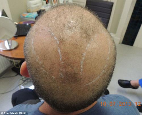 Lạ lùng chuyện cấy lông ngực lên đầu chữa hói - 2