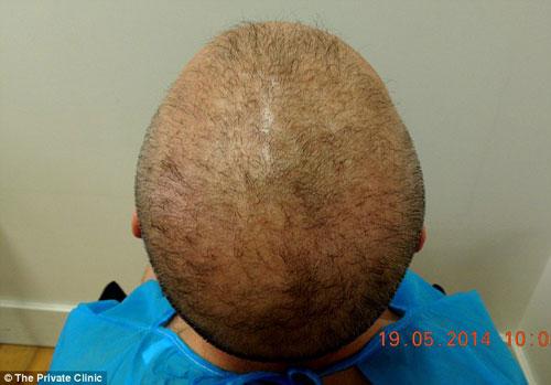 Lạ lùng chuyện cấy lông ngực lên đầu chữa hói - 3