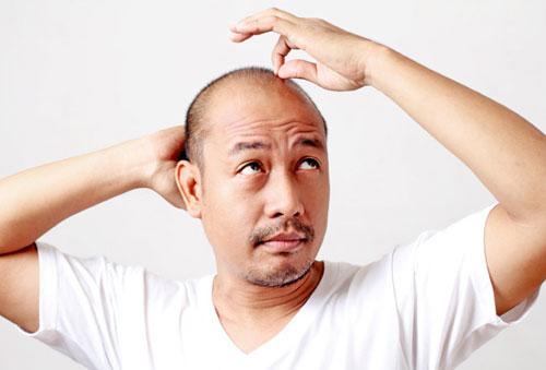 Lạ lùng chuyện cấy lông ngực lên đầu chữa hói - 1
