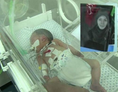 Em bé thần kỳ sinh ra trong bom đạn Gaza qua đời - 1