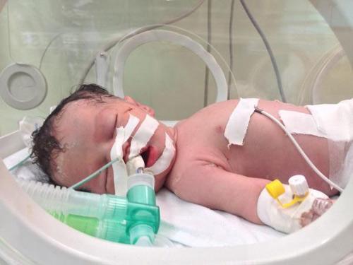 Em bé thần kỳ sinh ra trong bom đạn Gaza qua đời - 2