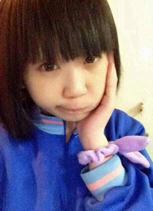 """Thiếu nữ Nhật rộ mốt chụp ảnh """"giả đau răng"""" - 6"""