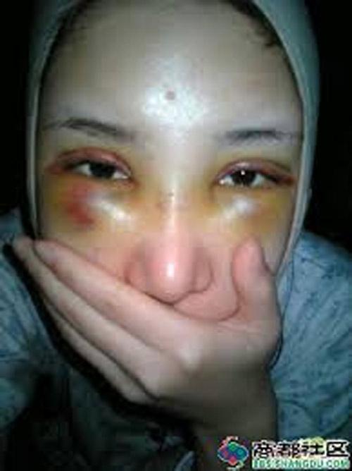 """Gương mặt dao kéo hỏng của """"hot girl bán dâm"""" - 4"""