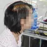 An ninh Xã hội - Bé 15 tuổi bị cha dượng chém nứt sọ