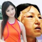 """Làm đẹp - 20 vạn """"mặt quỷ"""" ra đời từ lò thẩm mỹ Trung Quốc"""
