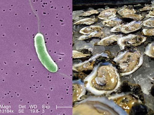Cảnh báo tử vong do vi khuẩn ăn thịt người tắm biển - 2