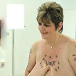 """Làm đẹp - Người phụ nữ gặp bất hạnh vì bộ ngực """"siêu khủng"""""""