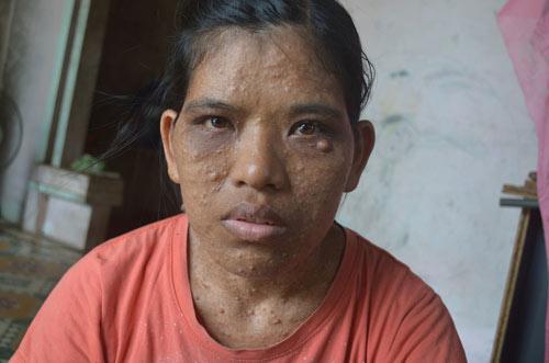 Bệnh lạ khiến người phụ nữ có mụn thịt mọc khắp người - 1