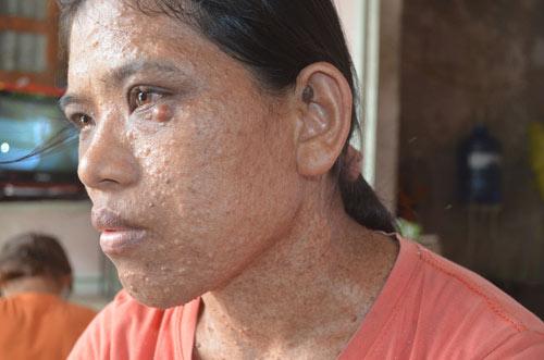 Bệnh lạ khiến người phụ nữ có mụn thịt mọc khắp người - 2